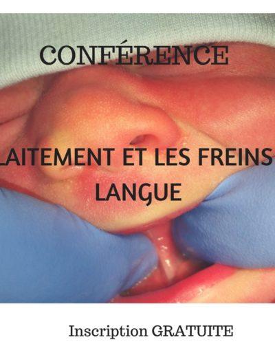 photo d'un bébé avec un frein de langue
