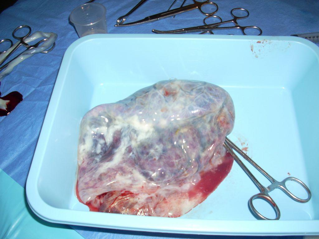 photo d'un placenta